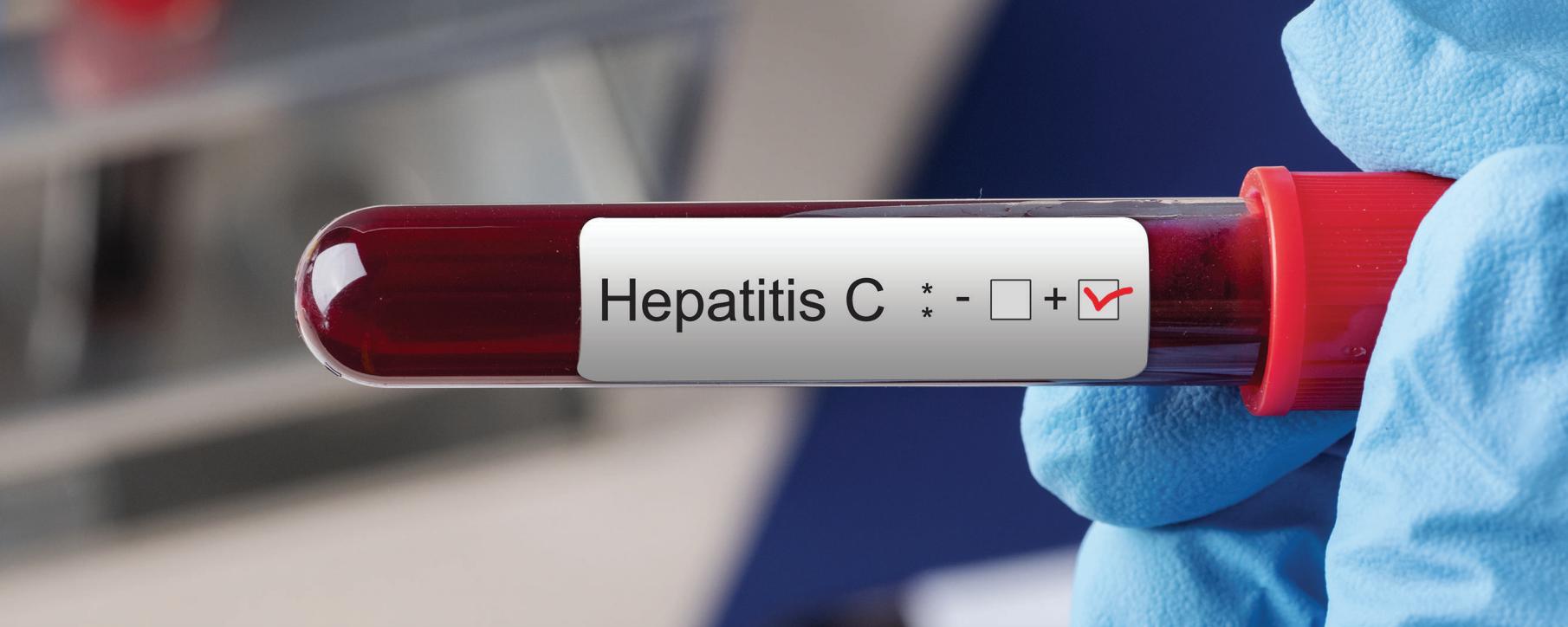 PSM_Hepatitis